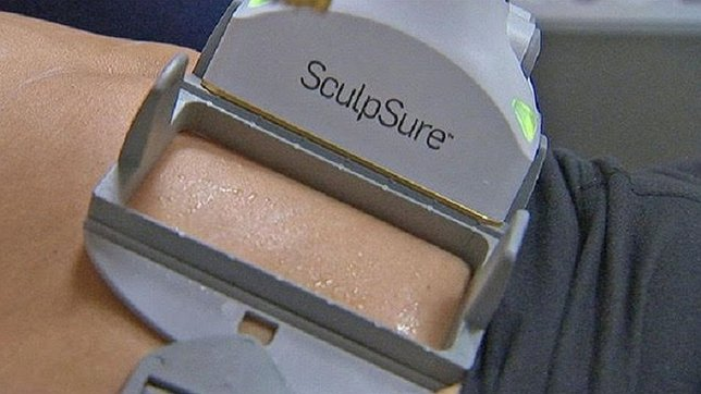 Top Cosmetic Spa to Introduce SculpSure, the World's First